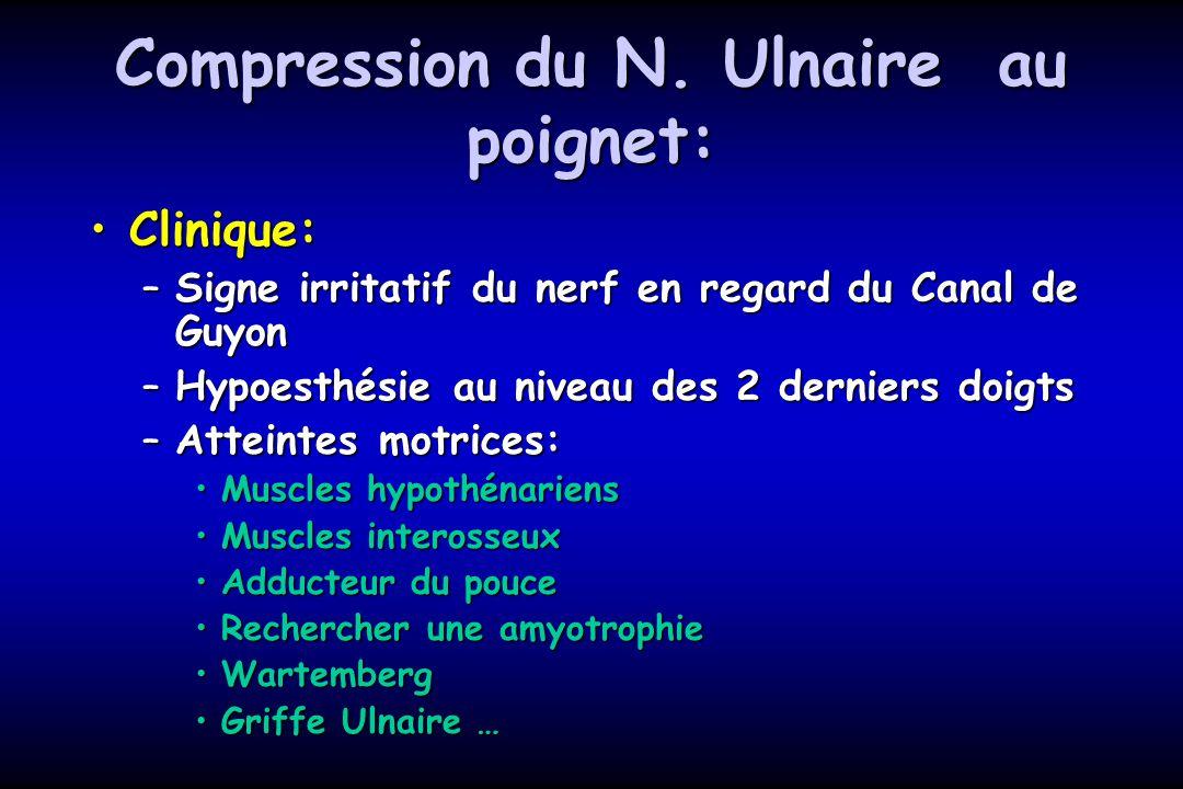 Compression du N. Ulnaire au poignet: Clinique:Clinique: –Signe irritatif du nerf en regard du Canal de Guyon –Hypoesthésie au niveau des 2 derniers d