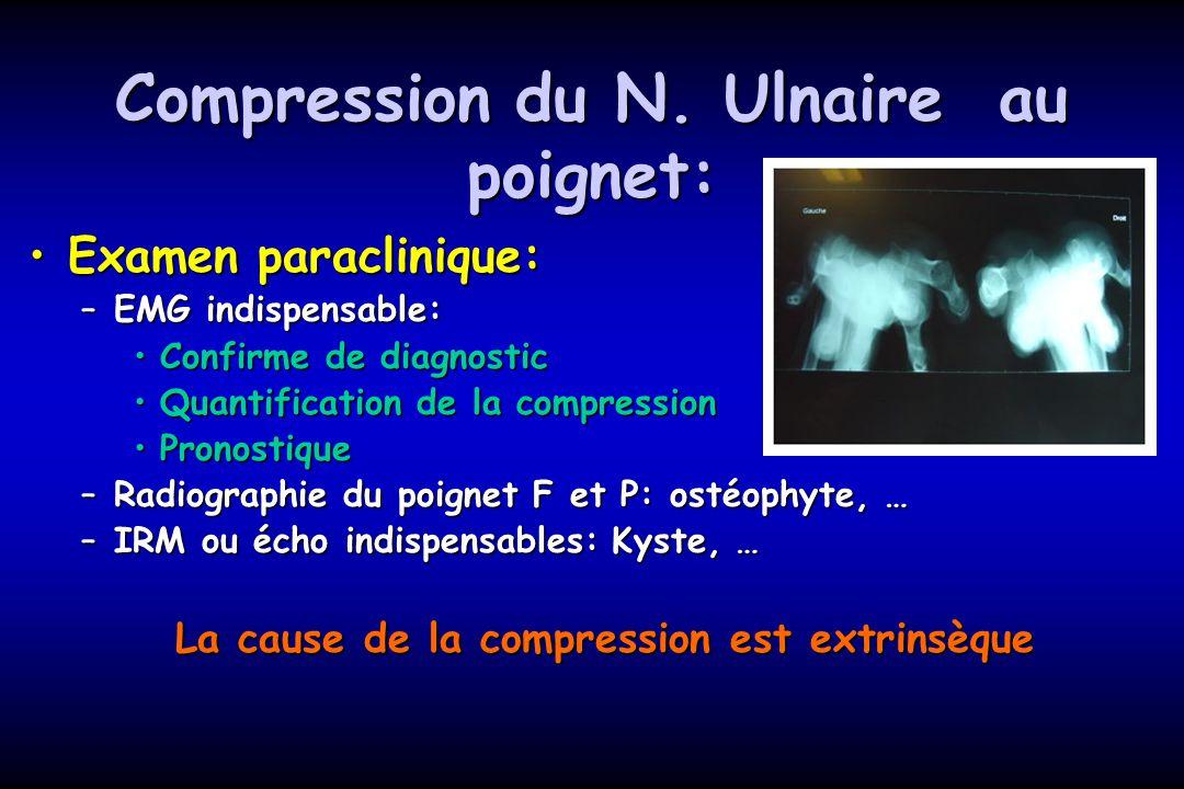 Compression du N. Ulnaire au poignet: Examen paraclinique:Examen paraclinique: –EMG indispensable: Confirme de diagnosticConfirme de diagnostic Quanti