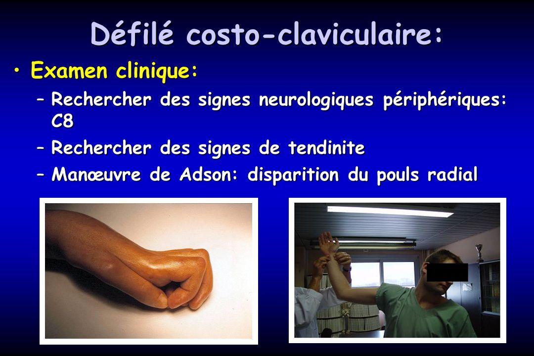 Défilé costo-claviculaire: Examen clinique:Examen clinique: –Rechercher des signes neurologiques périphériques: C8 –Rechercher des signes de tendinite