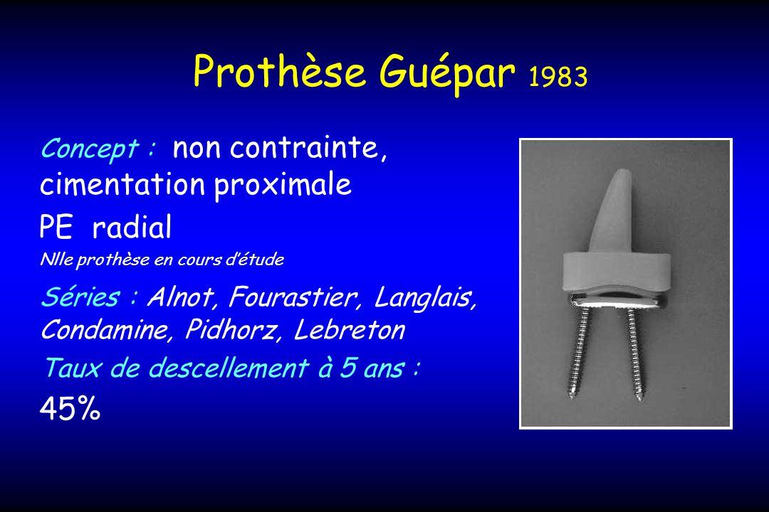 Prothèse Guépar 1983 Concept : non contrainte, cimentation proximale PE radial Nlle prothèse en cours détude Séries : Alnot, Fourastier, Langlais, Condamine, Pidhorz, Lebreton Taux de descellement à 5 ans : 45%