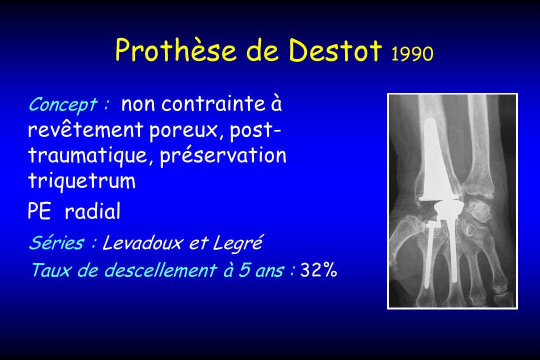 Prothèse de Destot 1990 Concept : non contrainte à revêtement poreux, post- traumatique, préservation triquetrum PE radial Séries : Levadoux et Legré Taux de descellement à 5 ans : 32%