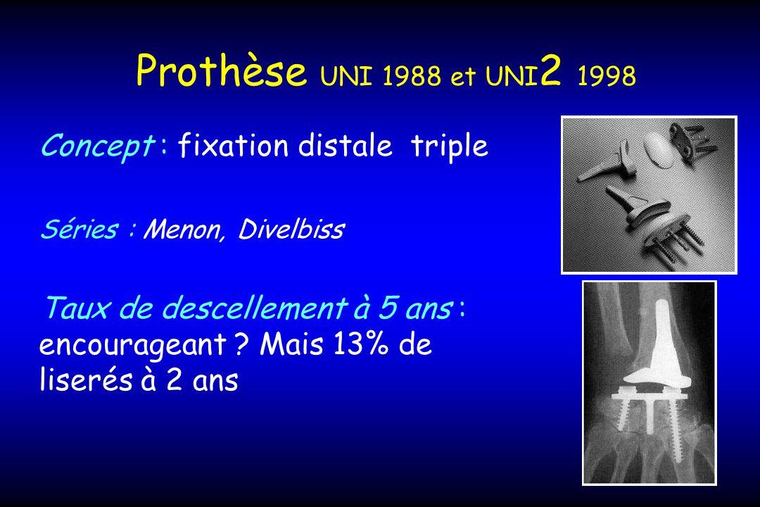 Prothèse UNI 1988 et UNI 2 1998 Concept : fixation distale triple Séries : Menon, Divelbiss Taux de descellement à 5 ans : encourageant .