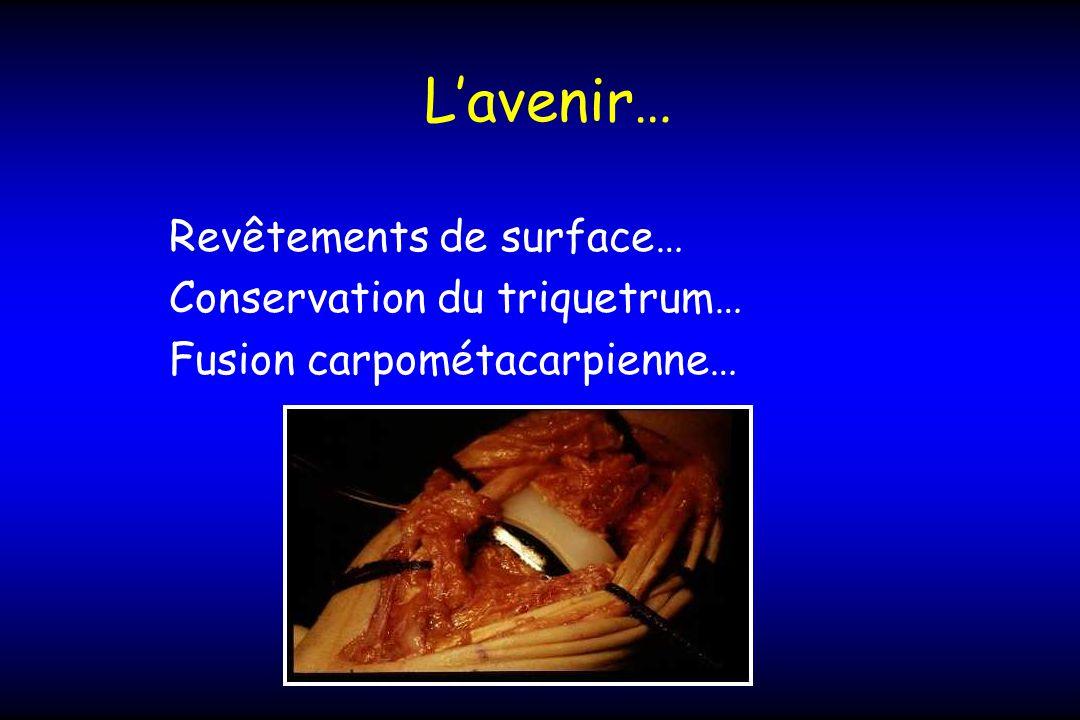 Lavenir… Revêtements de surface… Conservation du triquetrum… Fusion carpométacarpienne…