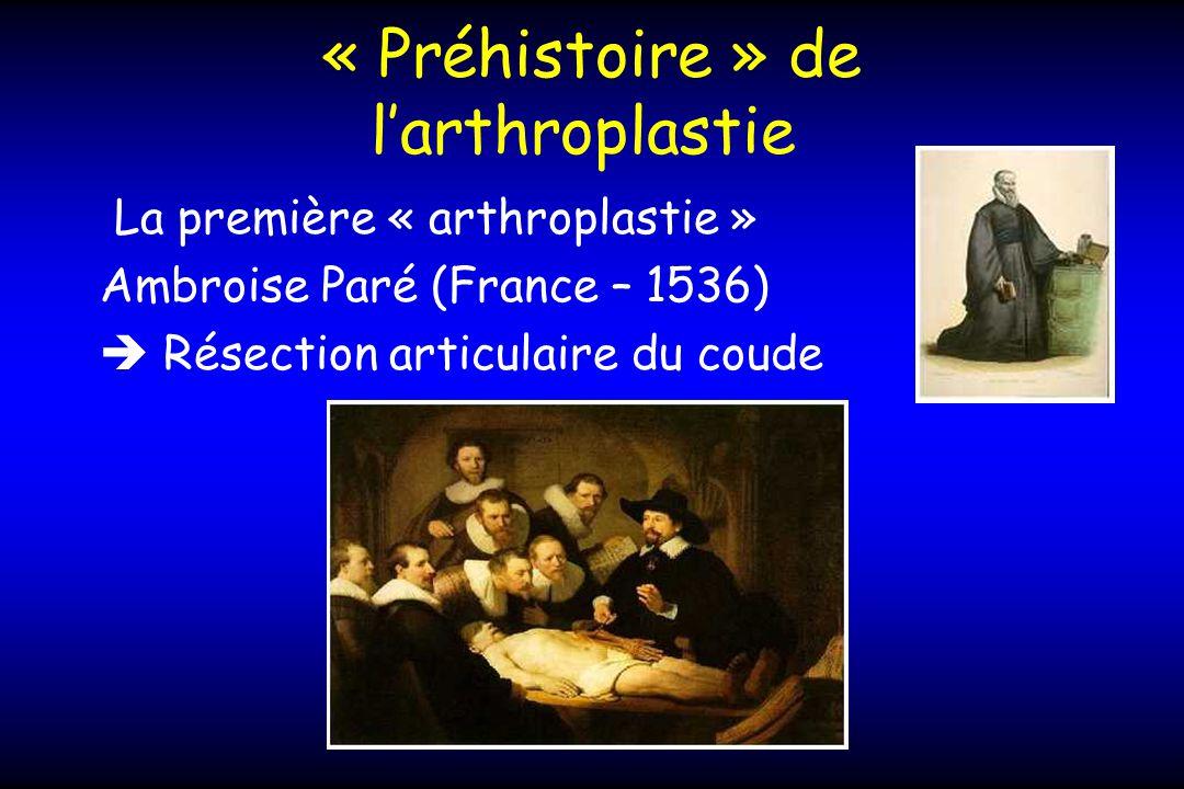 « Préhistoire » de larthroplastie La première « arthroplastie » Ambroise Paré (France – 1536) Résection articulaire du coude