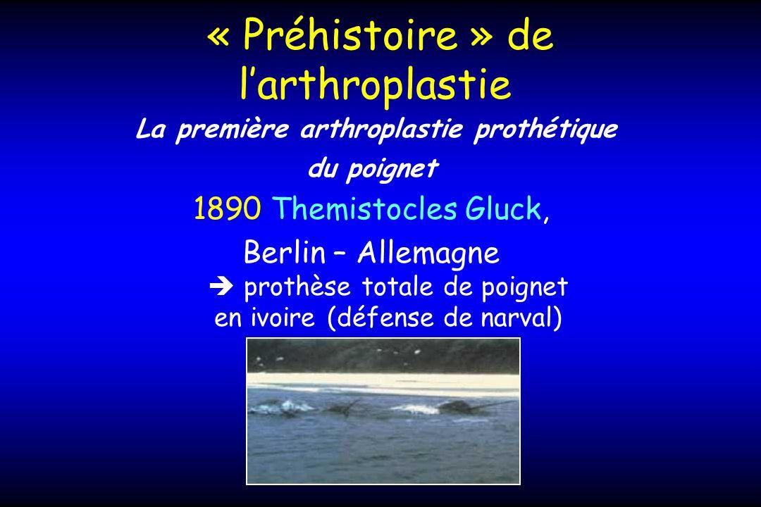 « Préhistoire » de larthroplastie La première arthroplastie prothétique du poignet 1890 Themistocles Gluck, Berlin – Allemagne prothèse totale de poignet en ivoire (défense de narval)