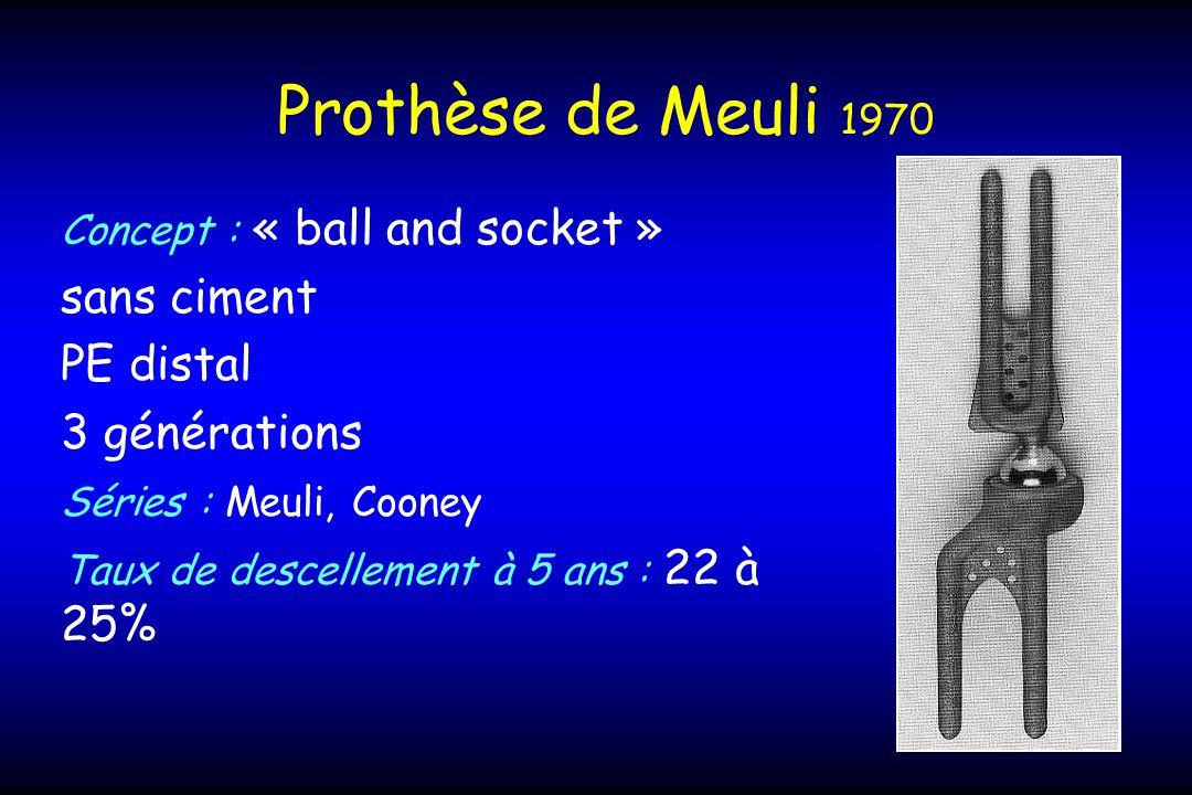 Prothèse de Meuli 1970 Concept : « ball and socket » sans ciment PE distal 3 générations Séries : Meuli, Cooney Taux de descellement à 5 ans : 22 à 25%