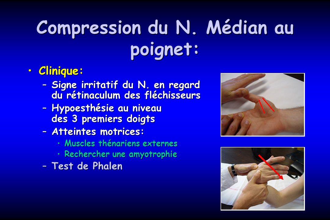 Compression du N. Médian au poignet: Clinique:Clinique: –Signe irritatif du N. en regard du rétinaculum des fléchisseurs –Hypoesthésie au niveau des 3