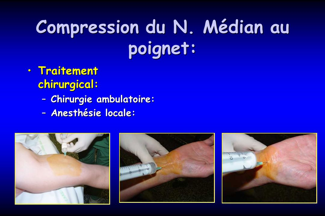 Compression du N. Médian au poignet: Traitement chirurgical:Traitement chirurgical: –Chirurgie ambulatoire: –Anesthésie locale: