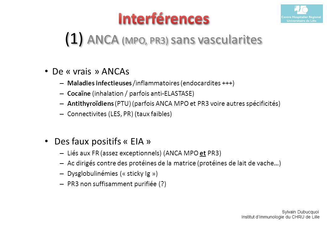 Sylvain Dubucquoi Institut dImmunologie du CHRU de Lille De « vrais » ANCAs – Maladies infectieuses /inflammatoires (endocardites +++) – Cocaïne (inha