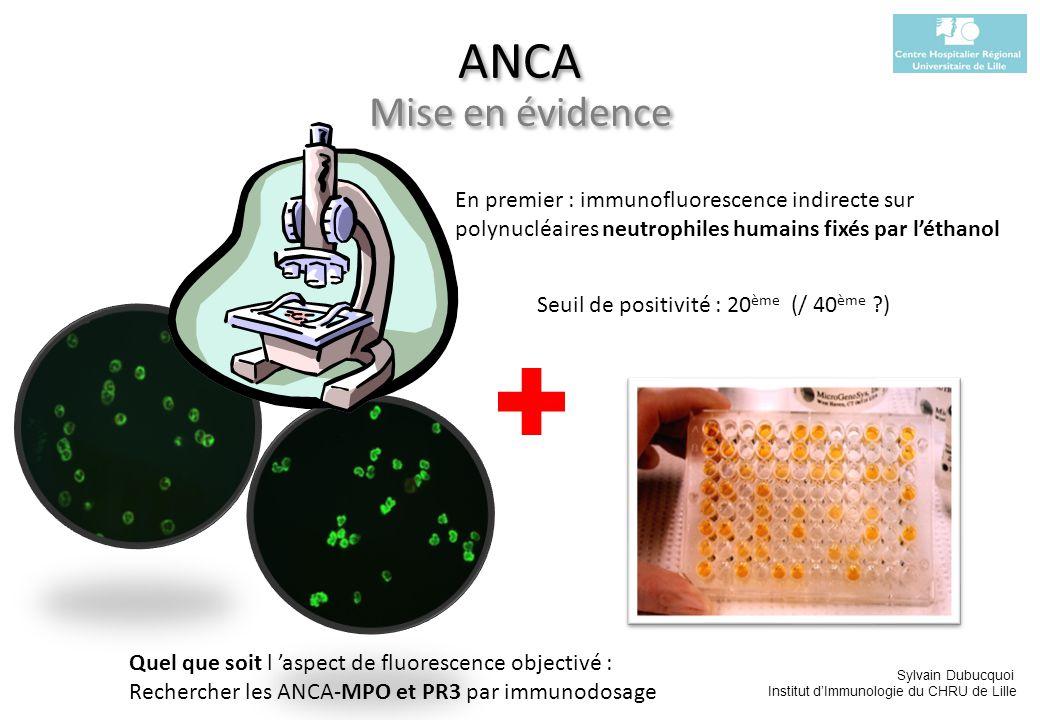 Sylvain Dubucquoi Institut dImmunologie du CHRU de Lille ANCA MPO PR3 Corrélation avec lévolution de la maladie .