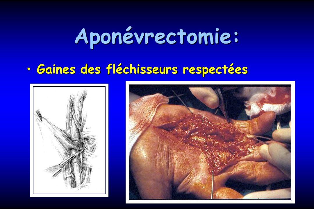 Aponévrectomie: Gaines des fléchisseurs respectéesGaines des fléchisseurs respectées