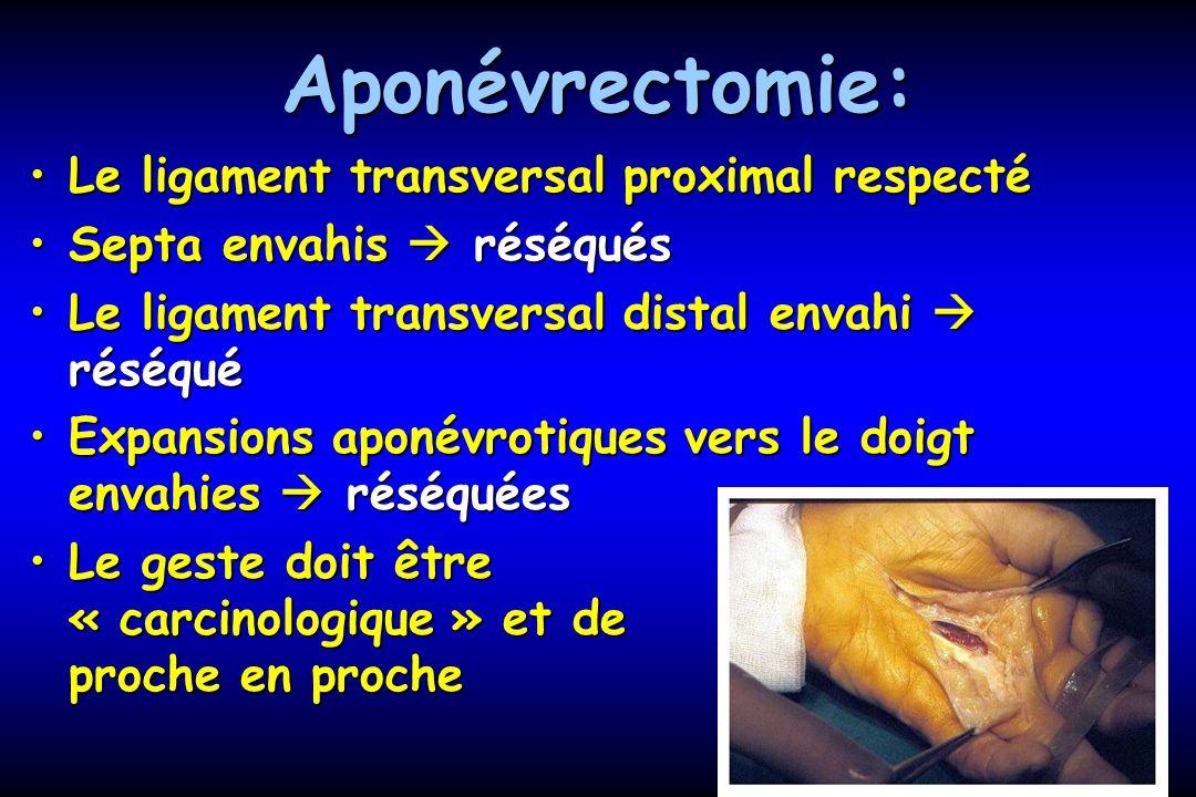Aponévrectomie: Le ligament transversal proximal respectéLe ligament transversal proximal respecté Septa envahis réséquésSepta envahis réséqués Le ligament transversal distal envahi réséquéLe ligament transversal distal envahi réséqué Expansions aponévrotiques vers le doigt envahies réséquéesExpansions aponévrotiques vers le doigt envahies réséquées Le geste doit être « carcinologique » et de proche en procheLe geste doit être « carcinologique » et de proche en proche