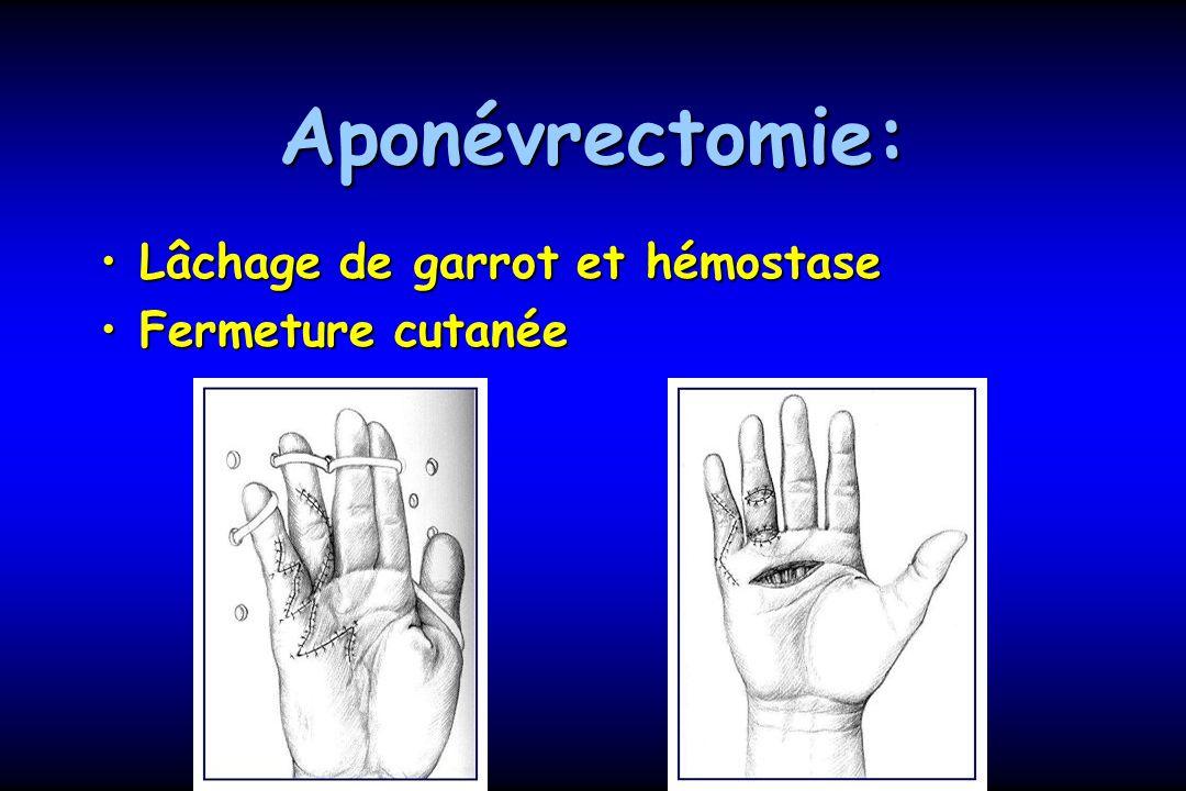 Aponévrectomie: Lâchage de garrot et hémostaseLâchage de garrot et hémostase Fermeture cutanéeFermeture cutanée