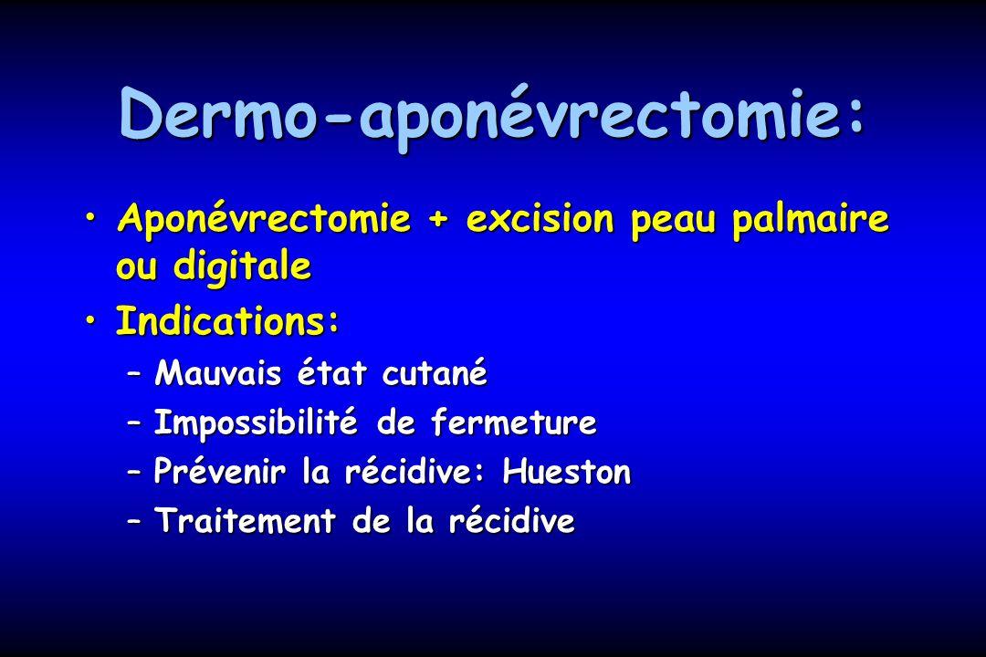 Dermo-aponévrectomie: Aponévrectomie + excision peau palmaire ou digitaleAponévrectomie + excision peau palmaire ou digitale Indications:Indications: –Mauvais état cutané –Impossibilité de fermeture –Prévenir la récidive: Hueston –Traitement de la récidive