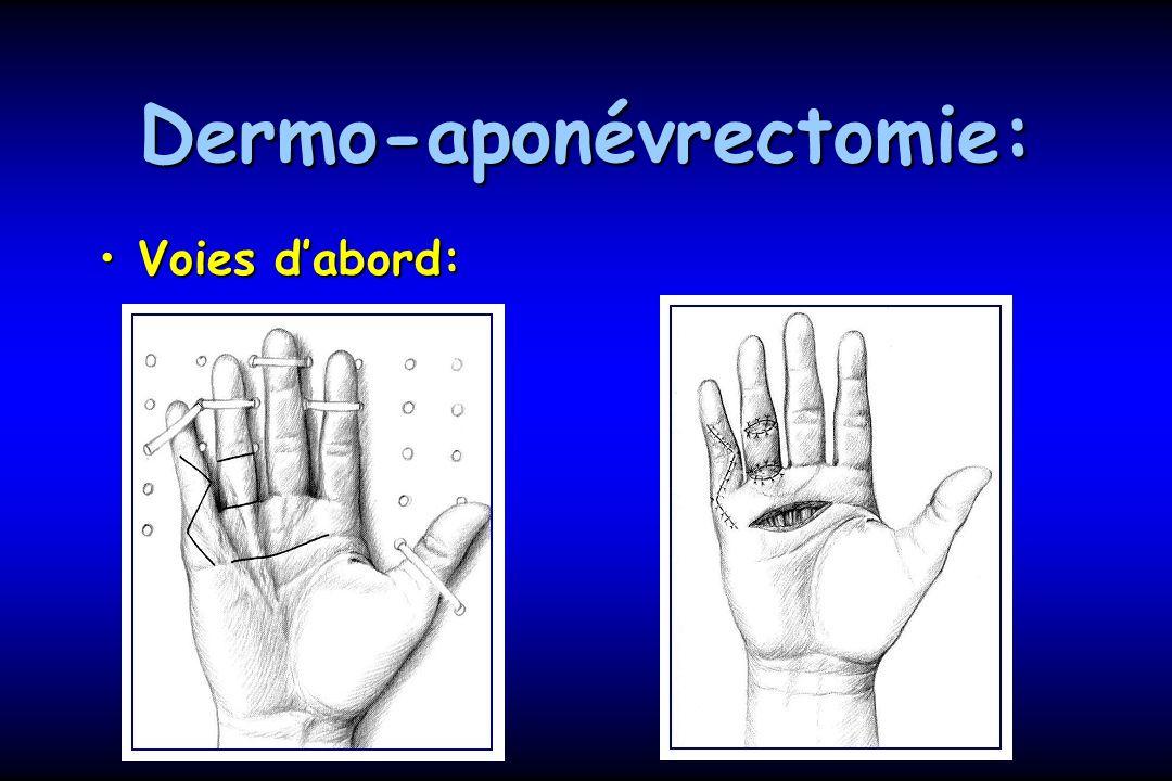 Dermo-aponévrectomie: Voies dabord:Voies dabord: