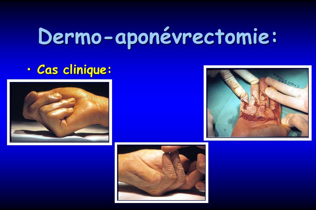 Dermo-aponévrectomie: Cas clinique:Cas clinique: