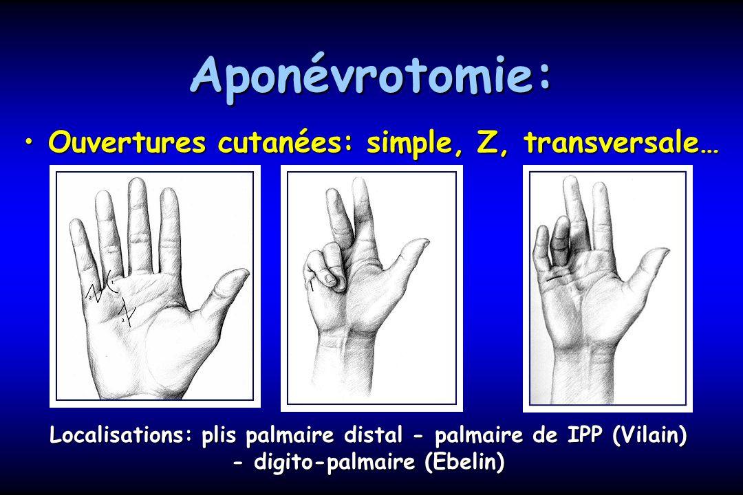 Aponévrotomie: Ouvertures cutanées: simple, Z, transversale…Ouvertures cutanées: simple, Z, transversale… Localisations: plis palmaire distal - palmaire de IPP (Vilain) - digito-palmaire (Ebelin)