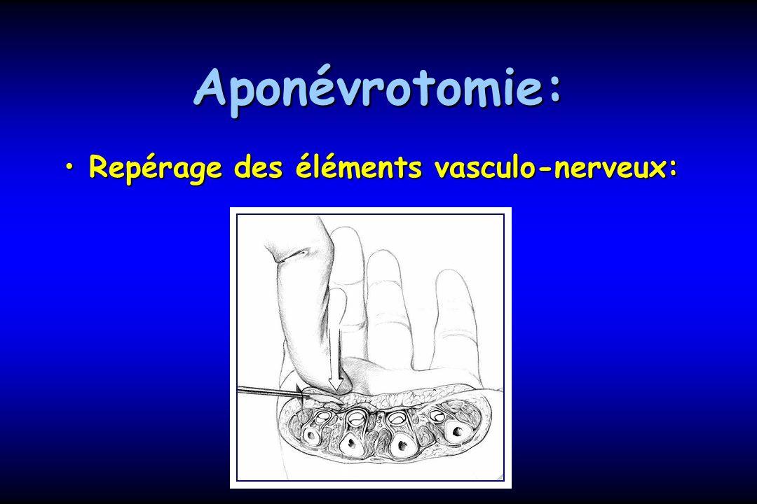 Aponévrotomie: Repérage des éléments vasculo-nerveux:Repérage des éléments vasculo-nerveux: