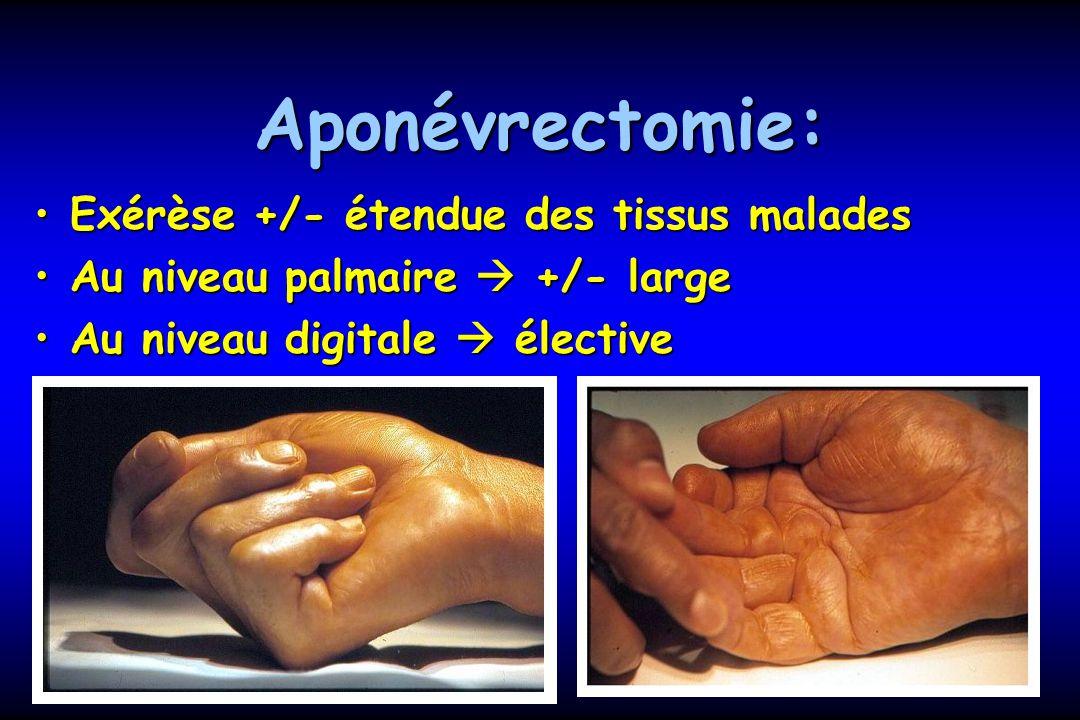 Aponévrectomie: Exérèse +/- étendue des tissus maladesExérèse +/- étendue des tissus malades Au niveau palmaire +/- largeAu niveau palmaire +/- large Au niveau digitale électiveAu niveau digitale élective