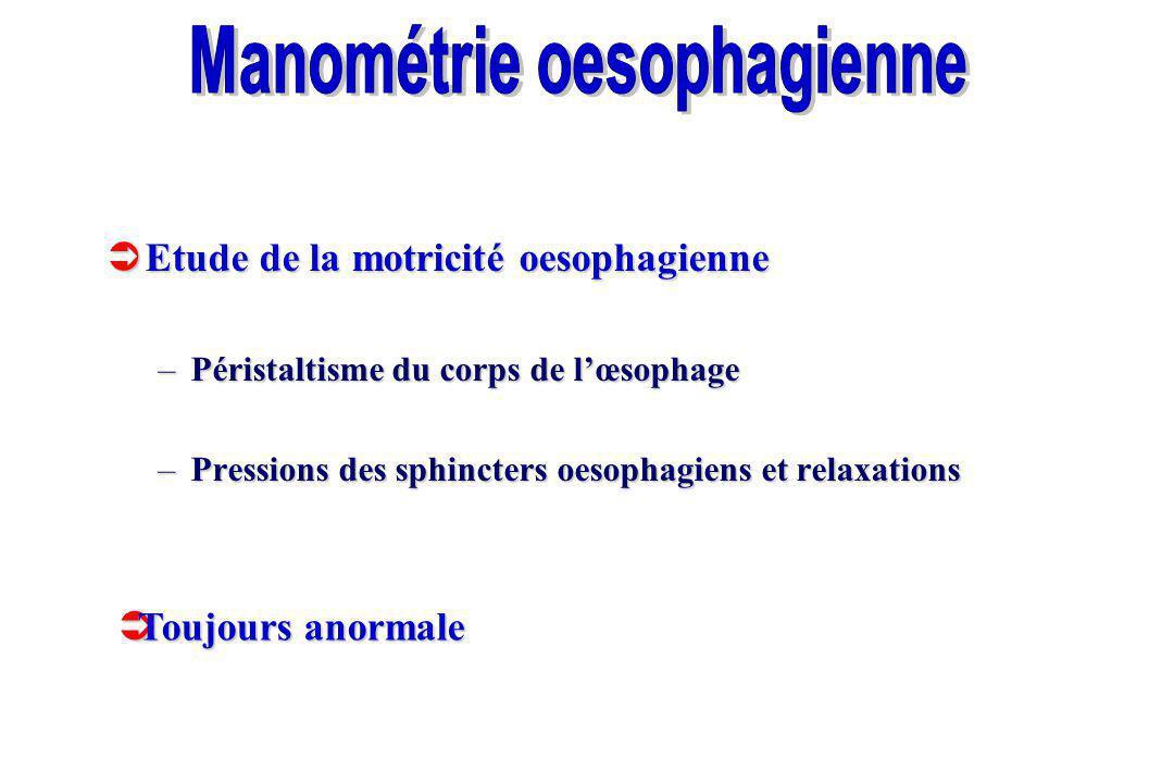 Etude de la motricité oesophagienne Etude de la motricité oesophagienne –Péristaltisme du corps de lœsophage –Pressions des sphincters oesophagiens et