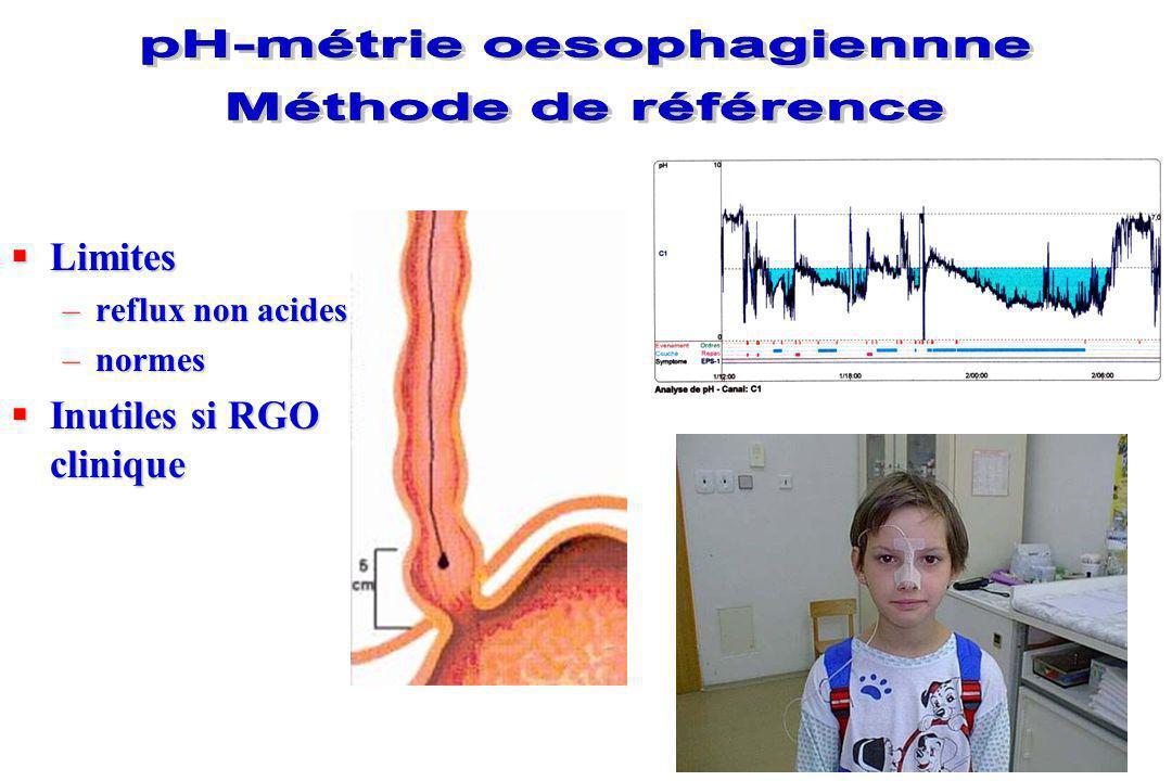 Faible sensibilité pour le diagnostic du RGO Anomalie anatomique oesophagienne Sténose anastomotique Sténose congénitale