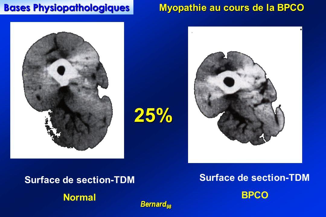 Myopathie au cours de la BPCO Bernard 98 Surface de section-TDM BPCO Surface de section-TDM Normal Bases Physiopathologiques 25%