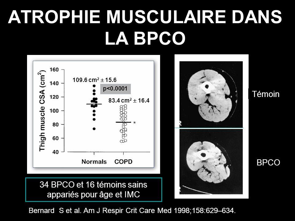 ATROPHIE MUSCULAIRE DANS LA BPCO BPCO p<0.0001 83.4 cm 2 16.4 109.6 cm 2 15.6 Témoin Bernard S et al. Am J Respir Crit Care Med 1998;158:629–634. 34 B