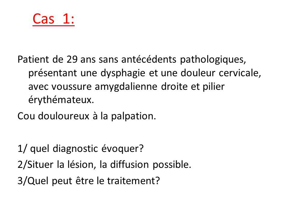 Cas 1: Patient de 29 ans sans antécédents pathologiques, présentant une dysphagie et une douleur cervicale, avec voussure amygdalienne droite et pilie