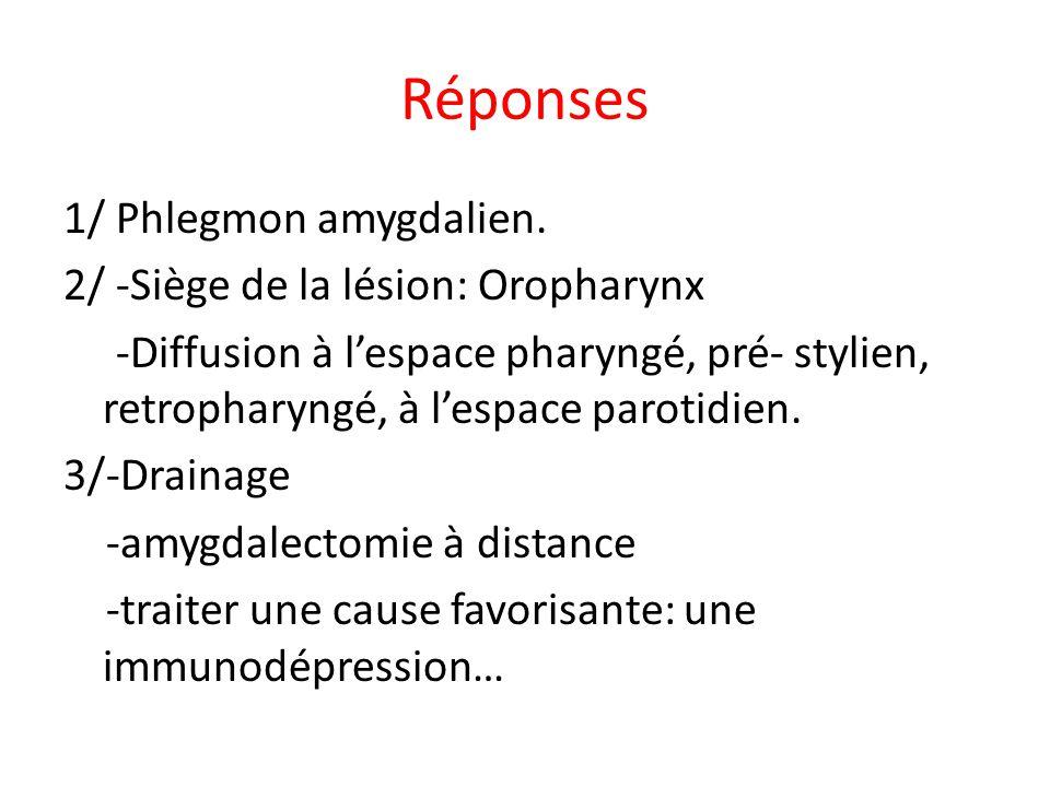 Réponses 1/ Phlegmon amygdalien. 2/ -Siège de la lésion: Oropharynx -Diffusion à lespace pharyngé, pré- stylien, retropharyngé, à lespace parotidien.
