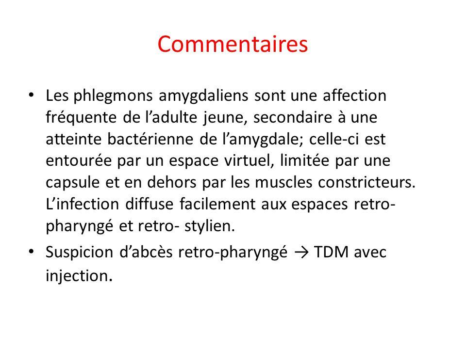 Commentaires Les phlegmons amygdaliens sont une affection fréquente de ladulte jeune, secondaire à une atteinte bactérienne de lamygdale; celle-ci est