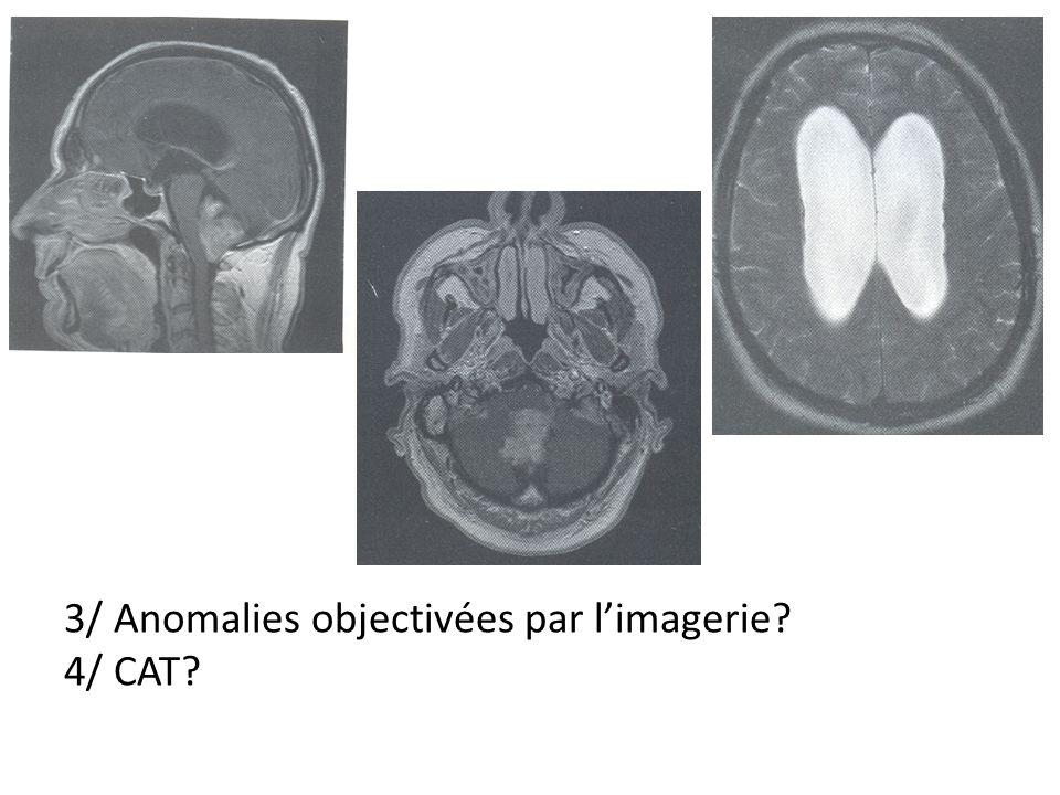 3/ Anomalies objectivées par limagerie 4/ CAT