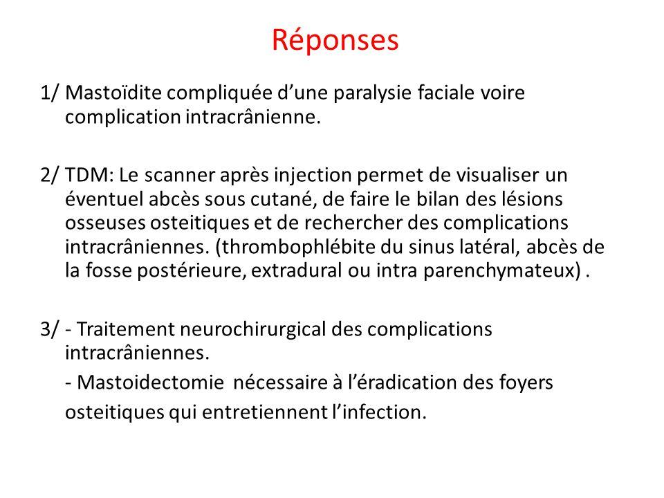 Réponses 1/ Mastoïdite compliquée dune paralysie faciale voire complication intracrânienne. 2/ TDM: Le scanner après injection permet de visualiser un