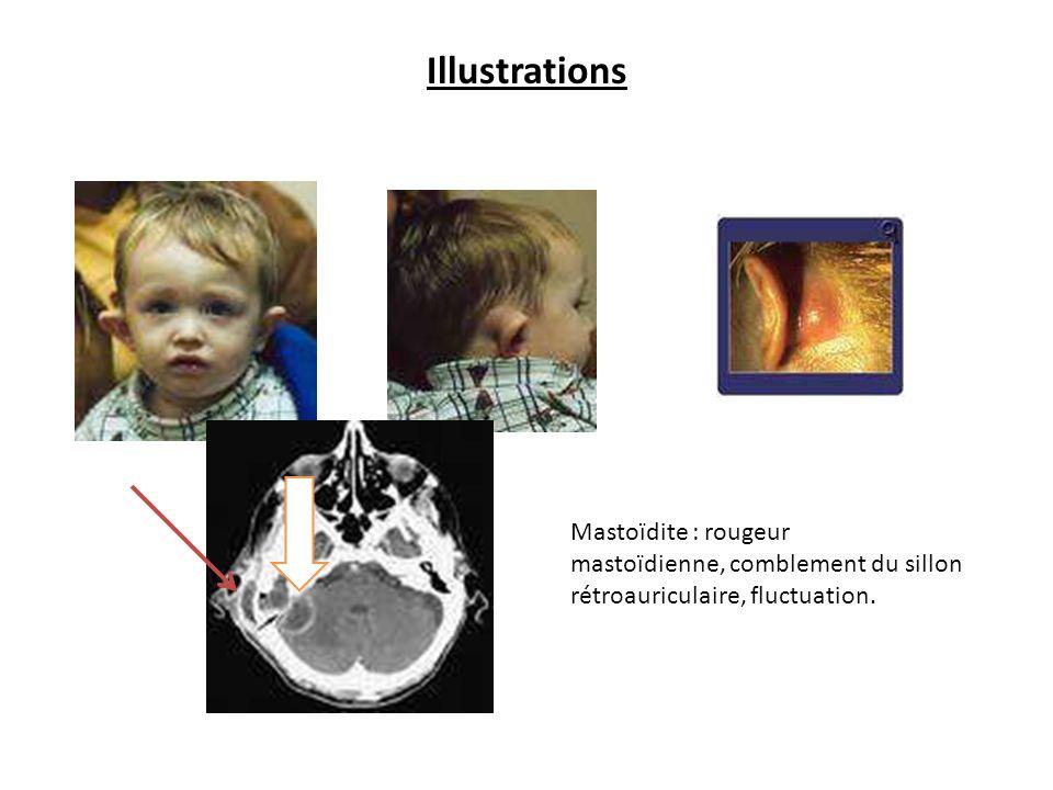 Illustrations Mastoïdite : rougeur mastoïdienne, comblement du sillon rétroauriculaire, fluctuation.