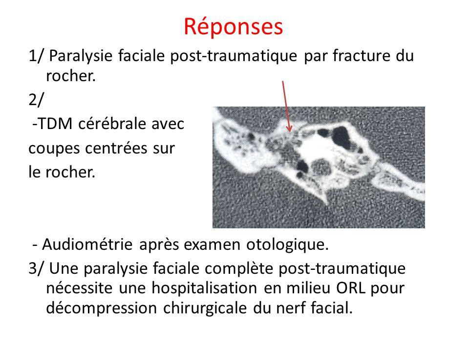 Réponses 1/ Paralysie faciale post-traumatique par fracture du rocher. 2/ -TDM cérébrale avec coupes centrées sur le rocher. - Audiométrie après exame