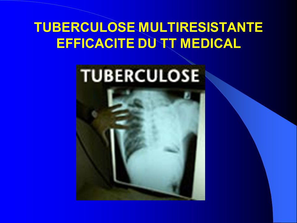 TUBERCULOSE MULTIRESISTANTE EFFICACITE DU TT MEDICAL