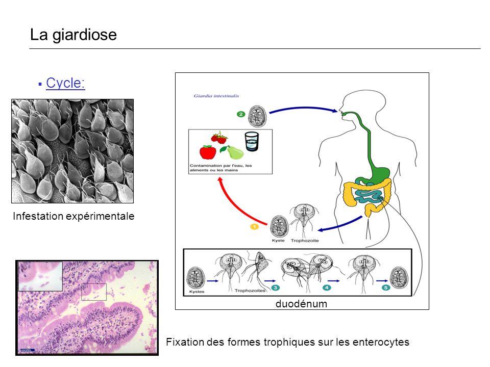 Agent pathogène -1000 espèces, hôtes vertébrés et invertébrés -Spécifiques de lHomme : Enterocytozoon bieneusi +++ (1985) Encephalitozoon intestinalis Encephalitozoon hellem Epidémiologie -Cosmopolite - Immunodéprimés +++ SIDA < 50 mm 3 Greffe dorgane Spore 1-3µm La microsporidiose
