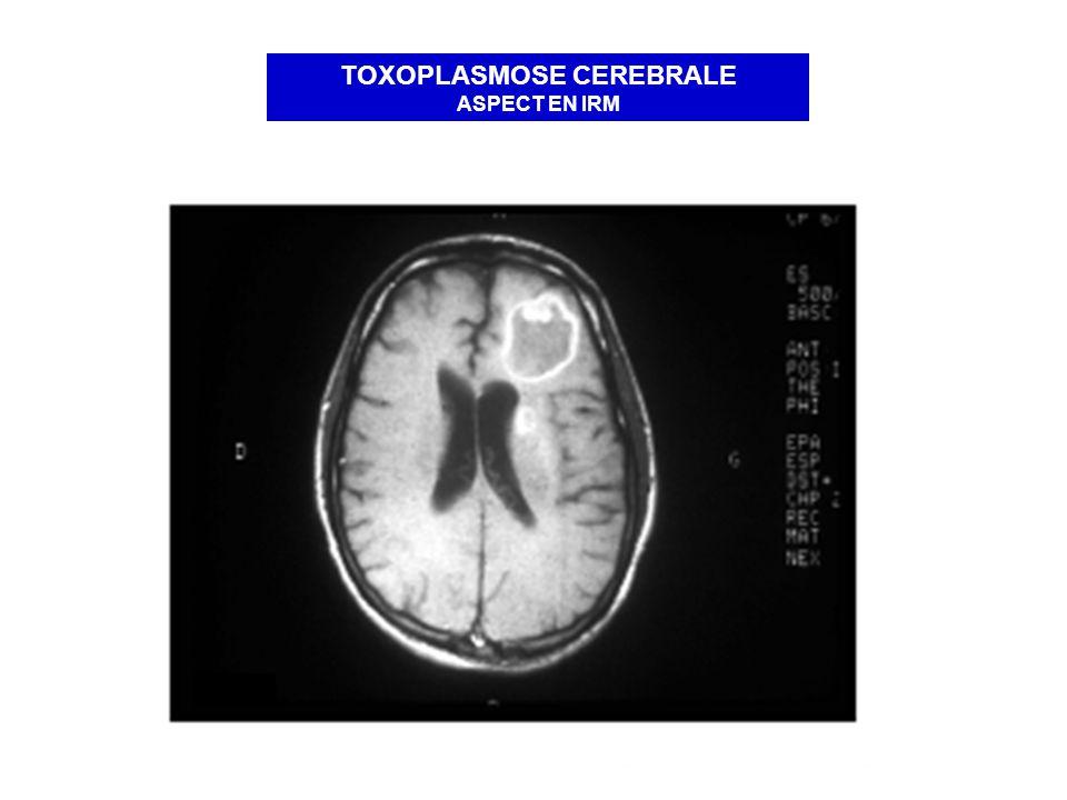 TOXOPLASMOSE CEREBRALE ASPECT EN IRM