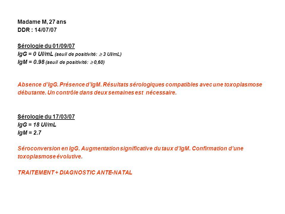 Madame M, 27 ans DDR : 14/07/07 Sérologie du 01/09/07 IgG = 0 UI/mL (seuil de positivité: 3 UI/mL) IgM = 0.98 (seuil de positivité: 0,60) Absence dIgG