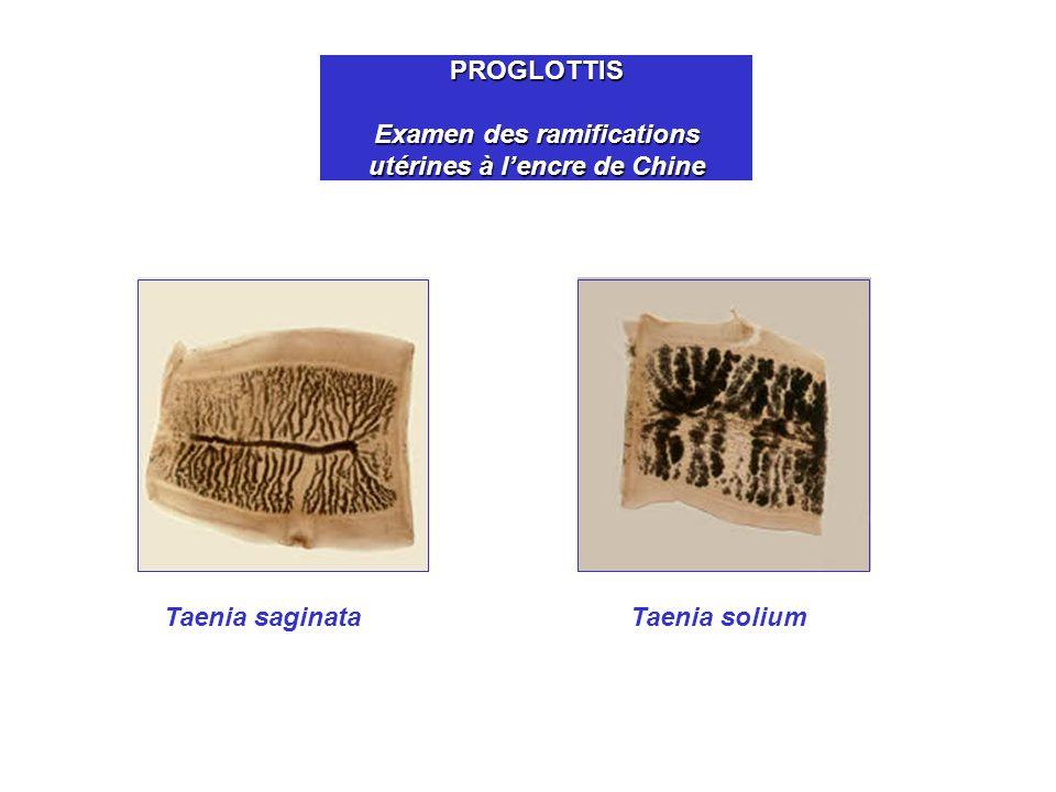 PROGLOTTIS Examen des ramifications utérines à lencre de Chine Taenia saginataTaenia solium