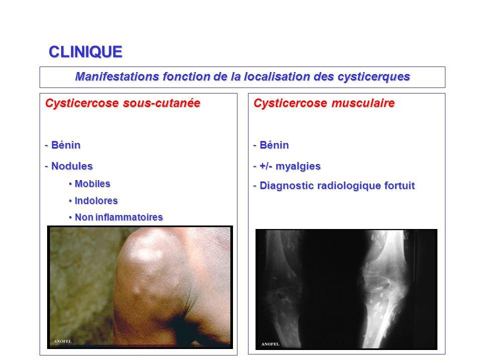 Manifestations fonction de la localisation des cysticerques CLINIQUE Cysticercose sous-cutanée - Bénin - Nodules Mobiles Mobiles Indolores Indolores Non inflammatoires Non inflammatoires Cysticercose musculaire - Bénin - +/- myalgies - Diagnostic radiologique fortuit