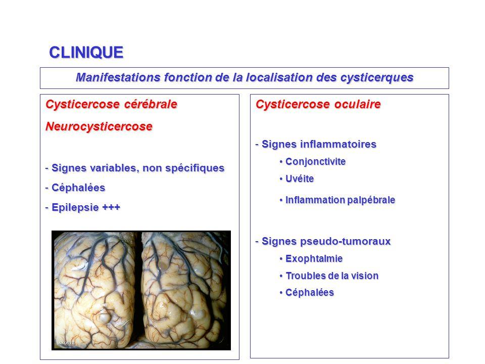 Manifestations fonction de la localisation des cysticerques CLINIQUE Cysticercose cérébrale Neurocysticercose - Signes variables, non spécifiques - Céphalées - Epilepsie +++ Cysticercose oculaire - Signes inflammatoires Conjonctivite Conjonctivite Uvéite Uvéite Inflammation palpébrale Inflammation palpébrale - Signes pseudo-tumoraux Exophtalmie Exophtalmie Troubles de la vision Troubles de la vision Céphalées Céphalées