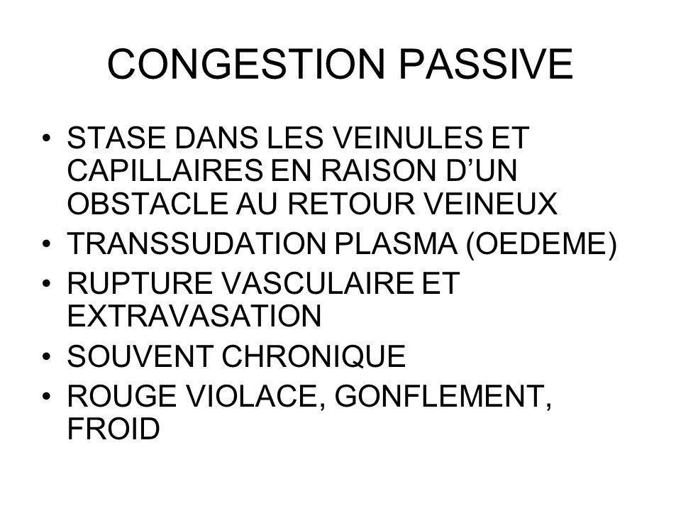 CONGESTION PASSIVE STASE DANS LES VEINULES ET CAPILLAIRES EN RAISON DUN OBSTACLE AU RETOUR VEINEUX TRANSSUDATION PLASMA (OEDEME) RUPTURE VASCULAIRE ET EXTRAVASATION SOUVENT CHRONIQUE ROUGE VIOLACE, GONFLEMENT, FROID