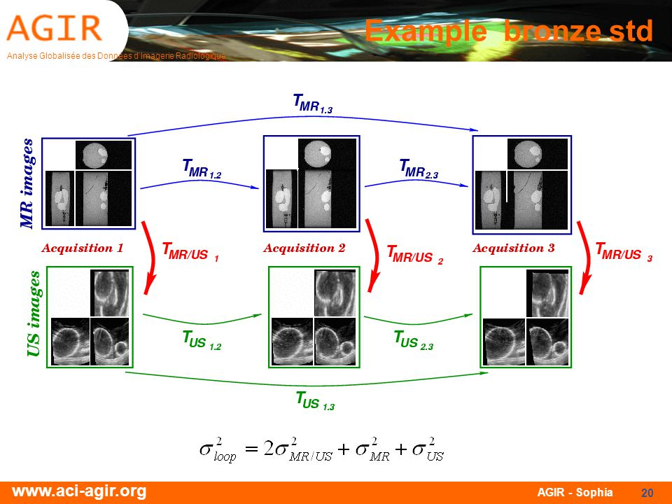 Analyse Globalisée des Données dImagerie Radiologique www.aci-agir.org AGIR - Sophia 20 Example bronze std