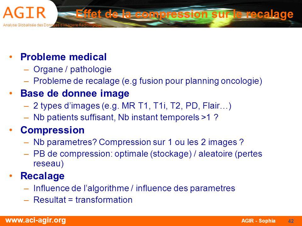 Analyse Globalisée des Données dImagerie Radiologique www.aci-agir.org AGIR - Sophia 42 Effet de la compression sur le recalage Probleme medical –Orga