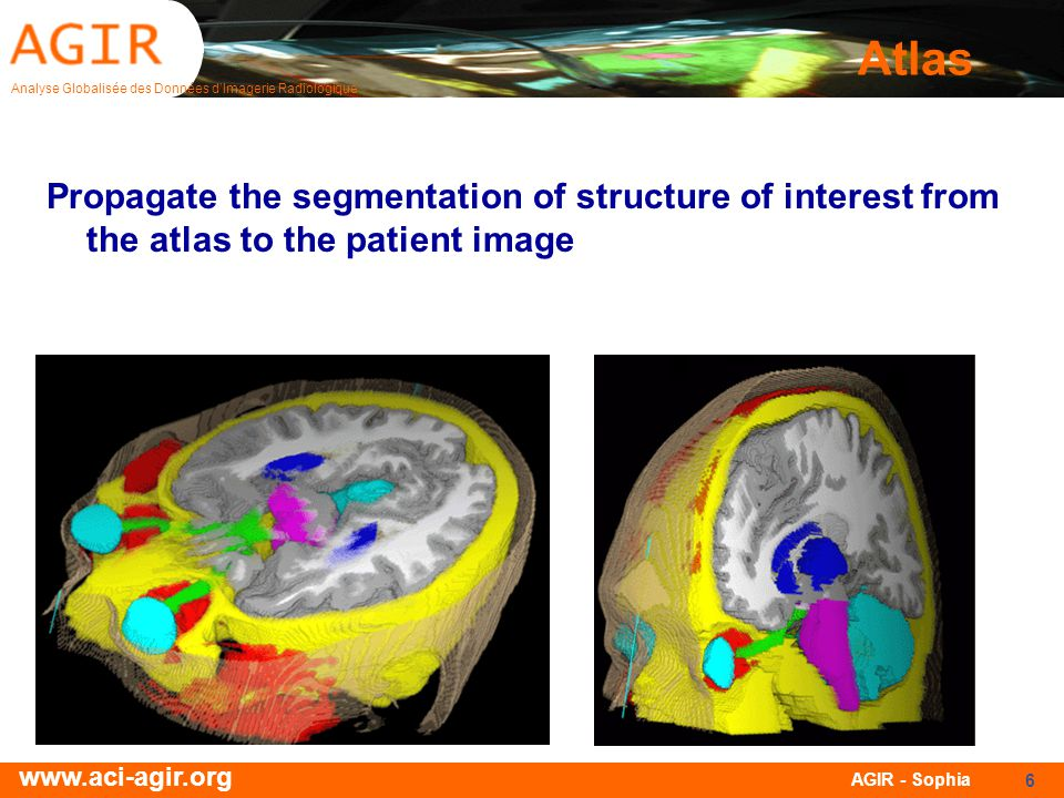 Analyse Globalisée des Données dImagerie Radiologique www.aci-agir.org AGIR - Sophia 6 Atlas Propagate the segmentation of structure of interest from the atlas to the patient image