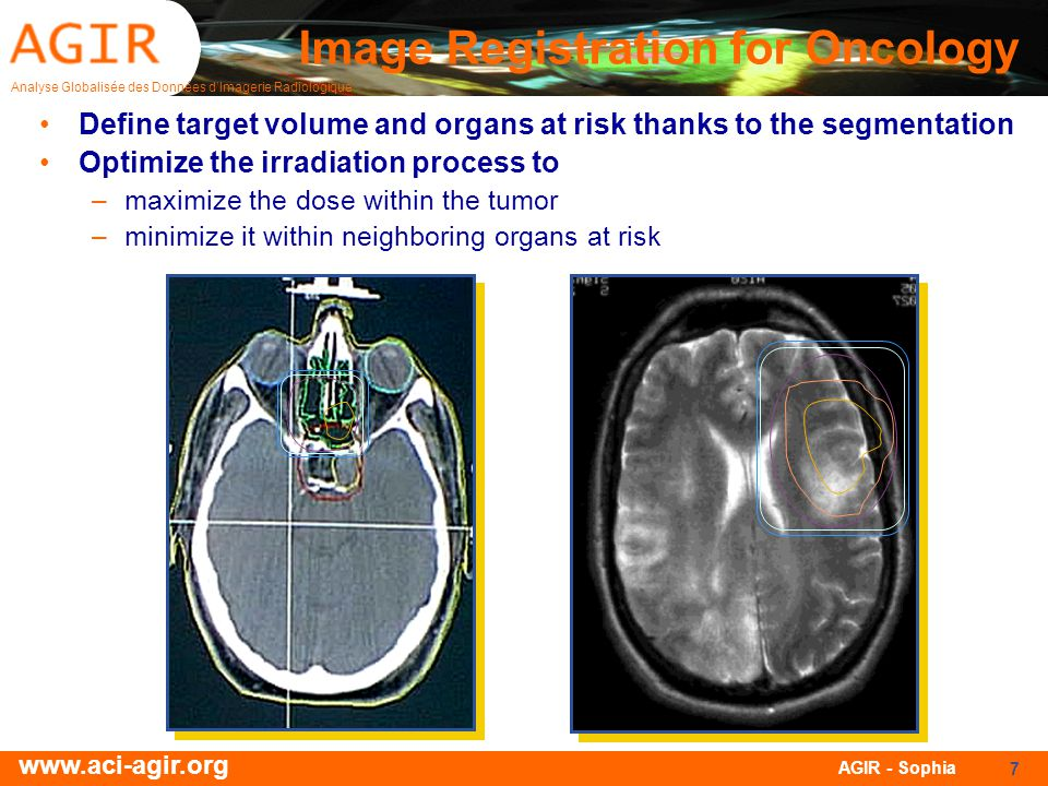 Analyse Globalisée des Données dImagerie Radiologique www.aci-agir.org AGIR - Sophia 7 Image Registration for Oncology Define target volume and organs at risk thanks to the segmentation Optimize the irradiation process to –maximize the dose within the tumor –minimize it within neighboring organs at risk