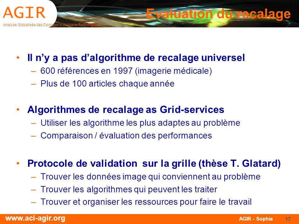 Analyse Globalisée des Données dImagerie Radiologique www.aci-agir.org AGIR - Sophia 17 Evaluation du recalage Il ny a pas dalgorithme de recalage uni