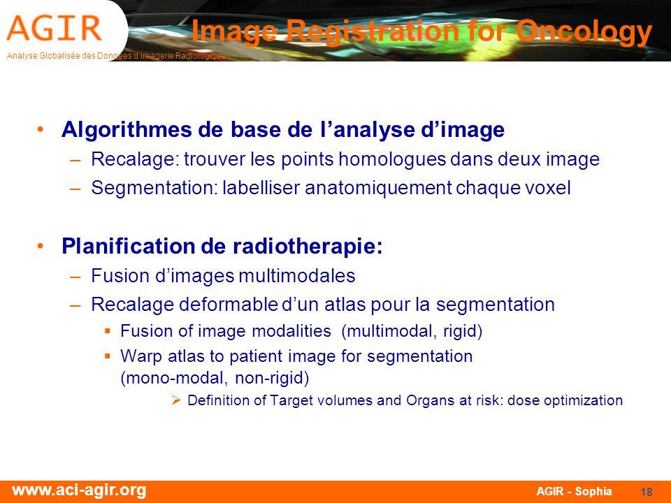 Analyse Globalisée des Données dImagerie Radiologique www.aci-agir.org AGIR - Sophia 18 Image Registration for Oncology Algorithmes de base de lanalys