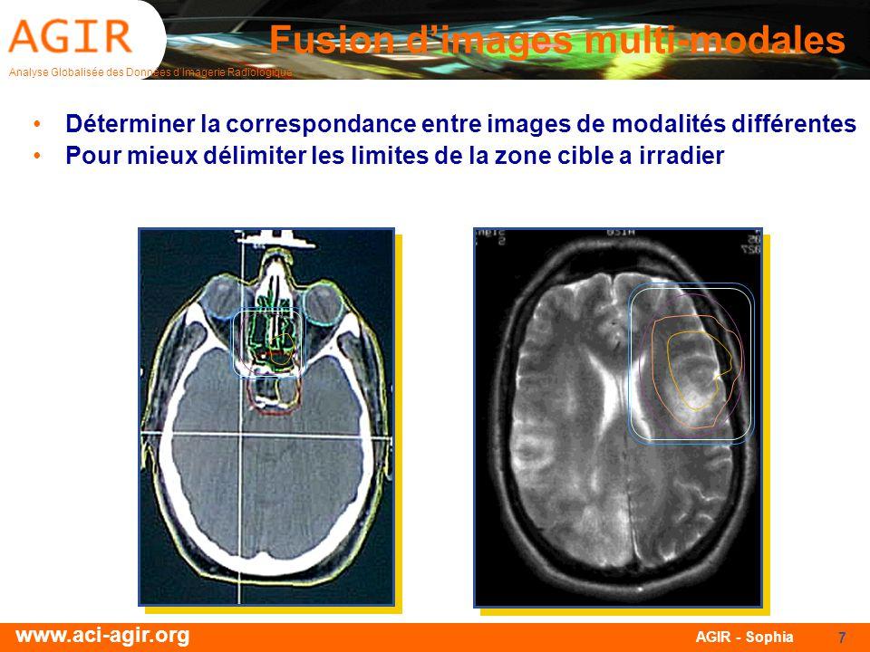 Analyse Globalisée des Données dImagerie Radiologique www.aci-agir.org AGIR - Sophia 7 Fusion dimages multi-modales Déterminer la correspondance entre