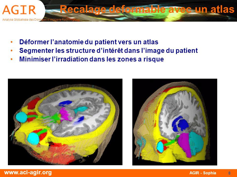 Analyse Globalisée des Données dImagerie Radiologique www.aci-agir.org AGIR - Sophia 8 Recalage deformable avec un atlas Déformer lanatomie du patient